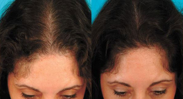 hair-restoration-girls