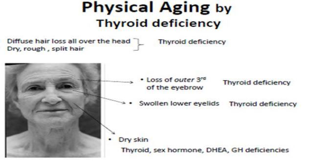 physical-aging-by-thyroid-deficiency