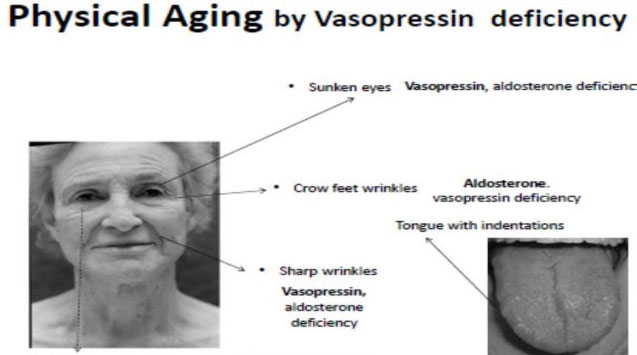 physical-aging-by-vasopressin-deficiency