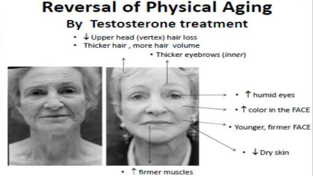 reversal-of-physical-aging-by-testosterone-treatment