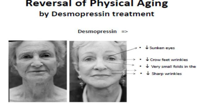 reversal-of-physical-aging