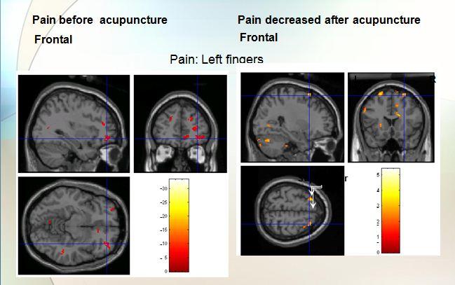 BFA Acupuncture