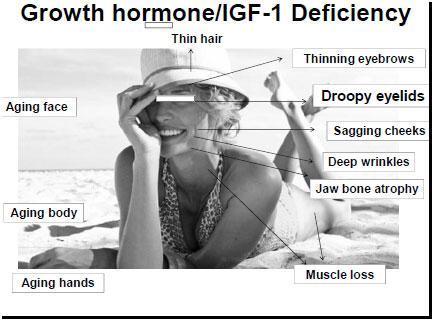 Deficiency Symptoms