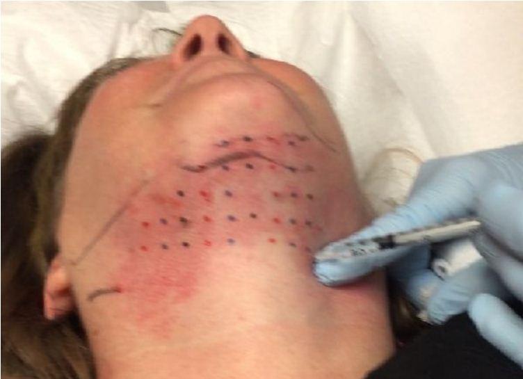 Double Chin Treatment Kybella Treatment