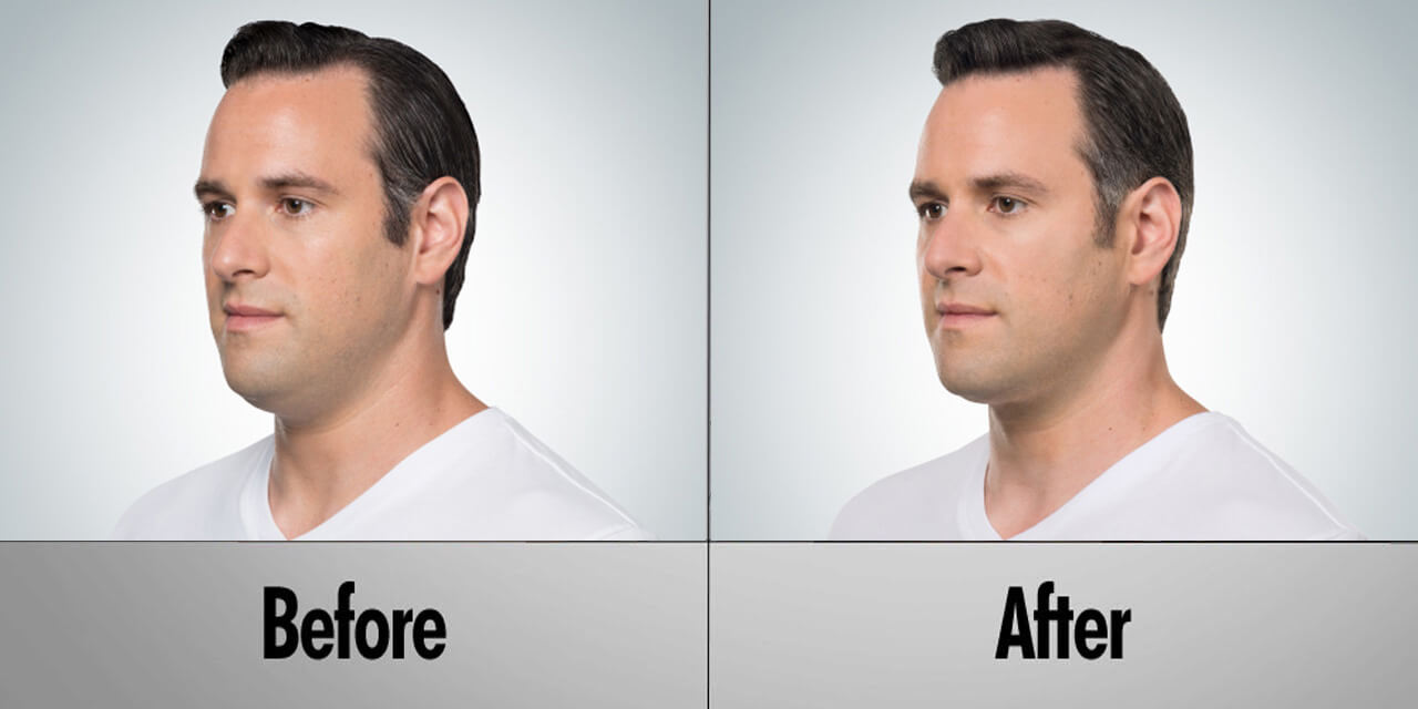 before after man pic